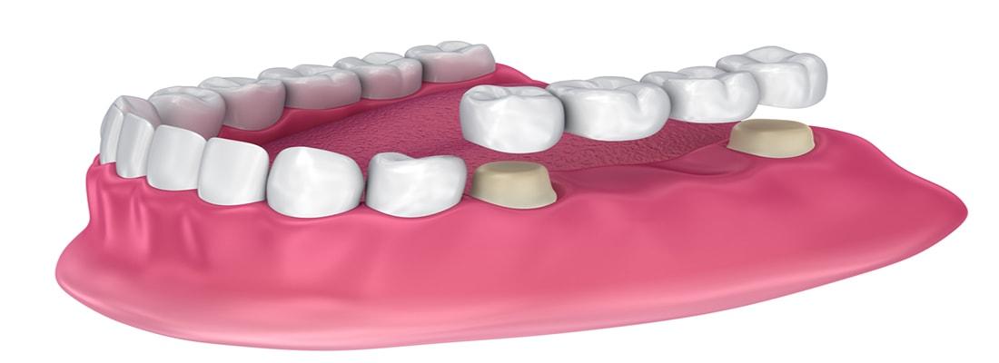 Зубные коронки и мосты
