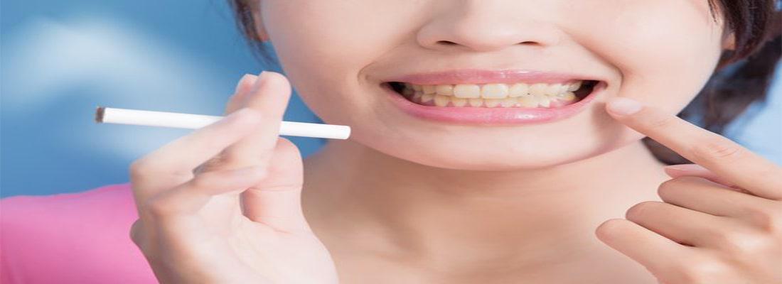 как восстановить яркость улыбки